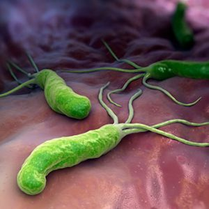 helicobacter-pylori-s3-cause