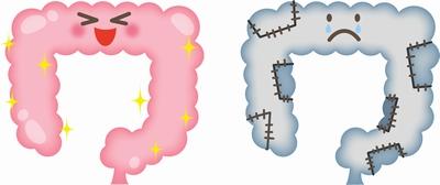 腸の病気にプロポリスが効果あり?|プロポリスの効果